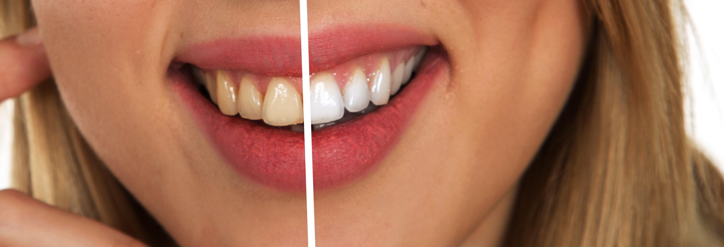 Teeth Whitening Cosmetic Dentistry Dr Richard Epstein